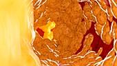 Illustration of fat inside of an artery