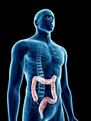 Illustration of a man's colon