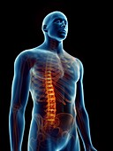 Illustration of a man's painful spine