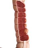 Illustration of the human colon