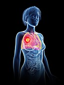 Illustration of a woman's lung cancer
