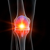 Illustration of a knee replacement