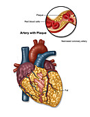 Heart Artery with Plaque, Illustration