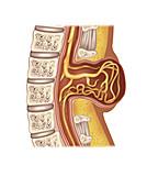 Spina Myelomeningocele, Illustration
