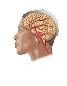 Brain Aneurysm in Situ