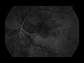 Branch Retinal Artery Occlusion, 2 of 5
