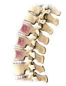 Multiple Myeloma, Spine