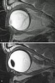 Retinal Detachment, MRI