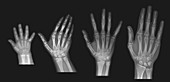 Hand X-Ray, Normal, Series