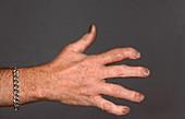Psoriatic Arthritis, Hand