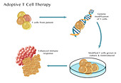 Adoptive T cell Therapy