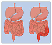 Normal Digestive System and Ulcerative Colitis