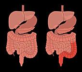 Healthy Digestive System & Colitis, Comparison