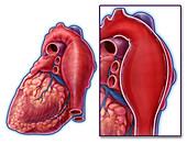 Thoracic Aortic Aneurysm, Illustration