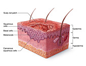 Squamous Cell Carcinoma Illustration