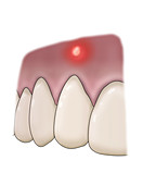 Periapical Abscess, Illustration