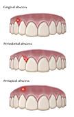 Types of Dental Abscesses, Illustration