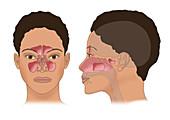 Sinus Anatomy, Illustration