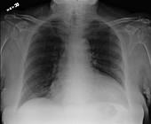 Large Pericardial Effusion, X-ray