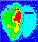 Nanoparticles as experimental brain cancer treatment