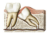 Wisdom teeth, illustration