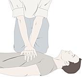 Chest compression, illustration