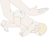 Heimlich manoeuvre on newborn, illustration