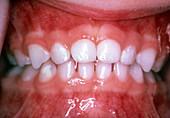 Primary Teeth Full Set, 3 Year Old