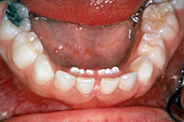 Permanent Teeth Eruption