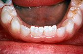Permanent Teeth, Removed Over-Retained Incisors