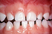Healthy Teeth in Child