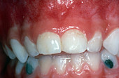Silver Fillings in Child's Neglected Teeth