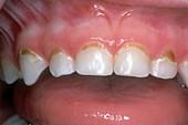 Dental Plaque in Child