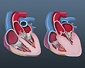 Normal and enlarged heart, illustration