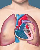 Pulmonary hypertension, illustration