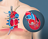 Heart transplant, removal and donor heart