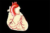 Coronary artery disease, illustration