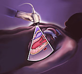 Heart ultrasound, illustration