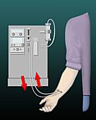 Dialysis, illustration