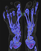 Gout, dual energy CT scan