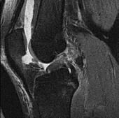Hemarthrosis, MRI