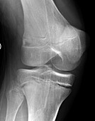 Salter-Harris fracture, X-ray