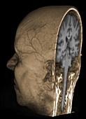 Normal brain, 3D MRI