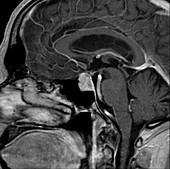 Pituitary macroadenoma, MRI