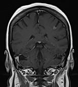 Subacute infarct, MRI