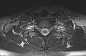 Normal neck and thoracic spine, MRI