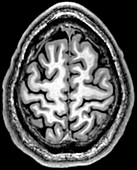 Normal Axial T1 Brain