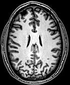 Normal Axial T1 Brain
