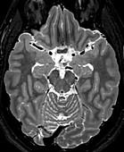 Normal Axial T2 Brain
