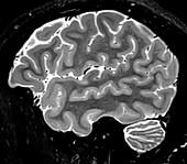 Normal Sagittal T2 Brain 1 0f 11